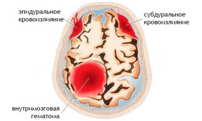 Кровоизлияния в головной мозг являются противопоказанием к приему медикамента
