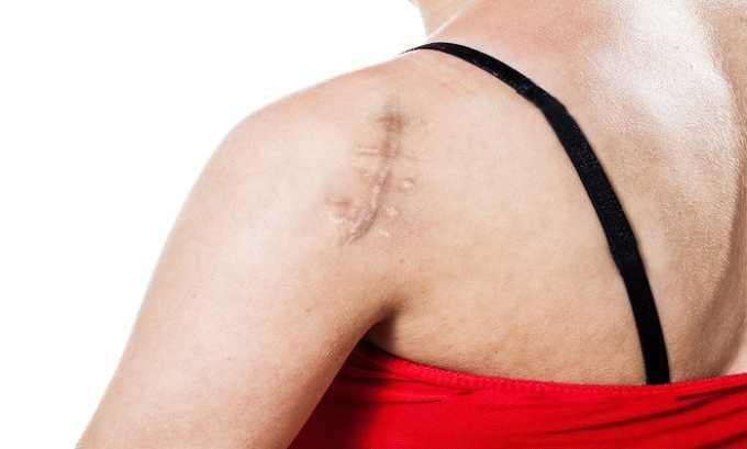 Венитан Форте применяется для лечения ушибов и шрамов