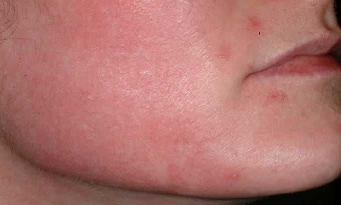 При знаком передозировки Лавенум считается появление гиперемии