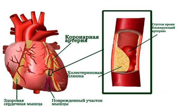 Прямым показанием к применению лекарственного средства считается профилактика развития повторного инфаркта миокарда