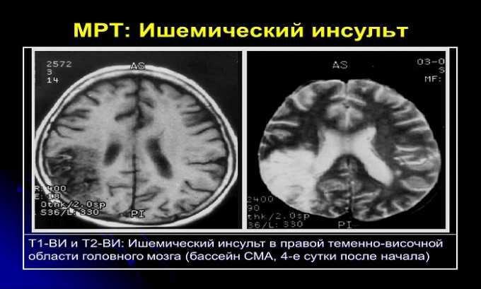 Аспирин оказывает профилактику ишемического инсульта