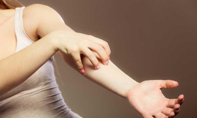 Мезатон нельзя использовать при аллергии на компоненты медикамента
