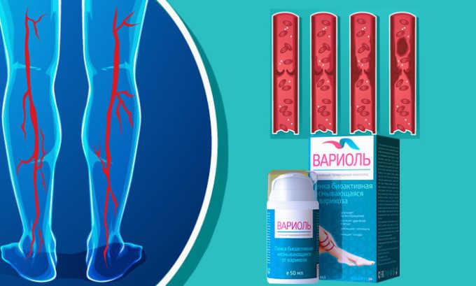 При курсовом применении активные компоненты Вариоль постепенно разжижают кровь, что снижает давление на венозные сосуды
