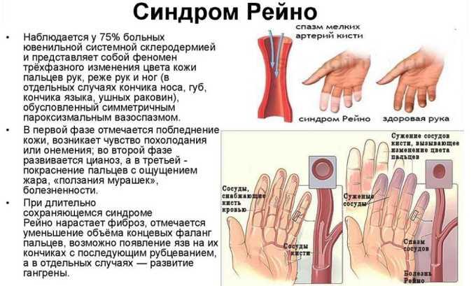 Сермион 10 прописывается пациентам с синдром Рейно