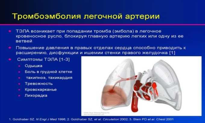 Препарат показан к приему при тромбоэмболии артерий в легких