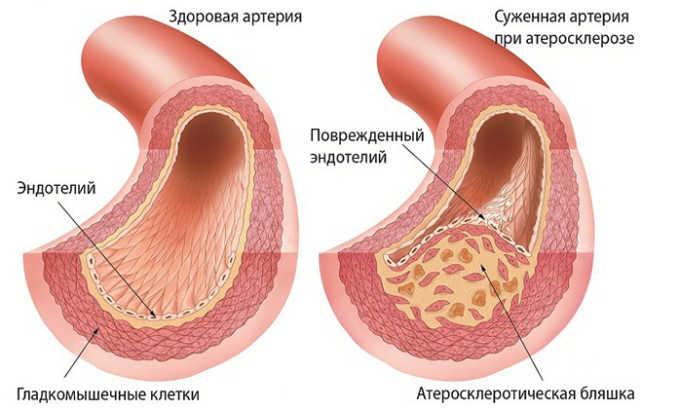 Препарат используется при прогрессирующем атеросклерозе