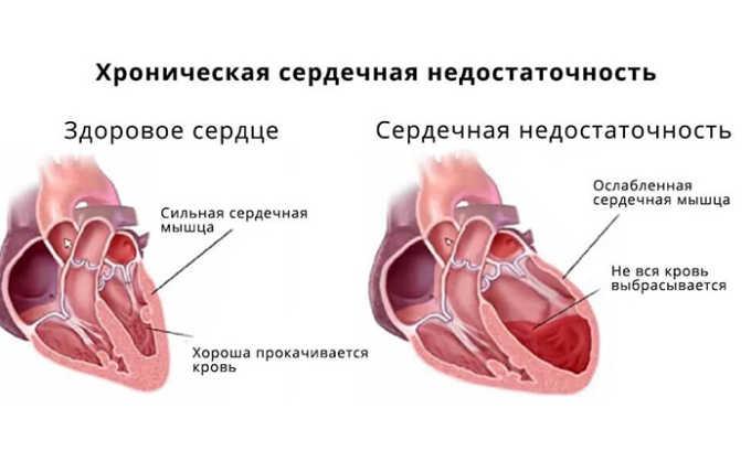 Уколы используются при комплексном лечении хронической недостаточности сердца