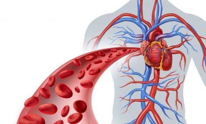 Отеки возникают из-за нарушения микроциркуляции крови