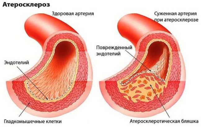 Цибор назначают при атеросклерозе