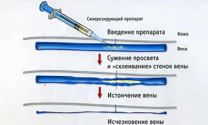 Методика склерозирования основана на введении в вену особого препарата, способствующего слипанию стенок сосуда