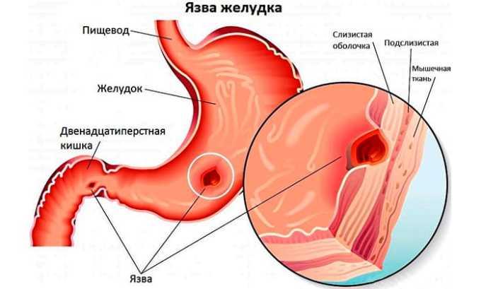 Раствор не назначают при язвенных поражениях органов ЖКТ