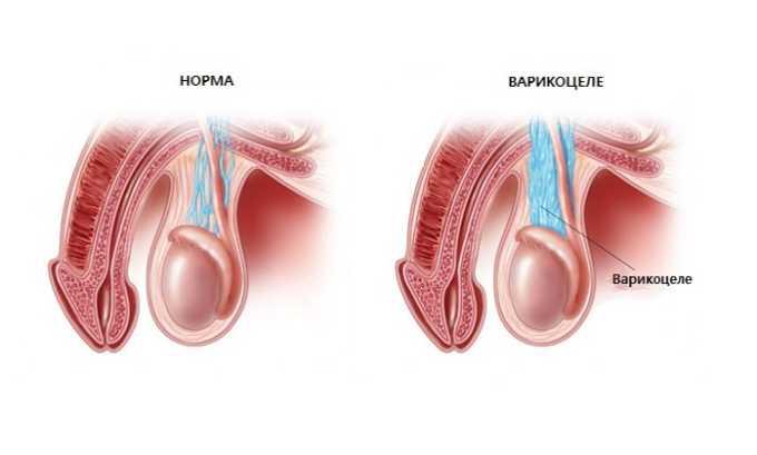 На первой стадии варикоза половых органов влияние патологии на потенцию незначительно