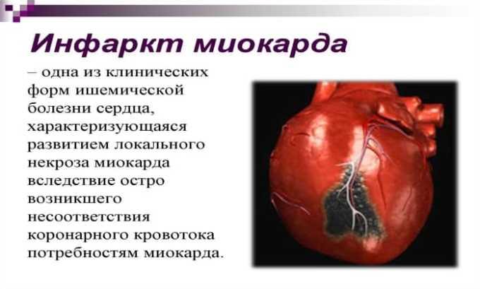 Актилизе показан при остром инфаркте миокарда