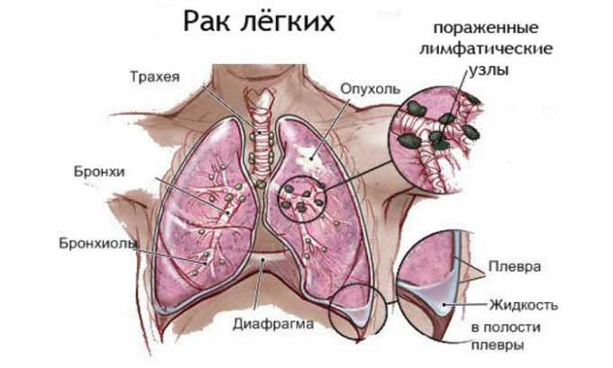 При раке легких препарат не назначается