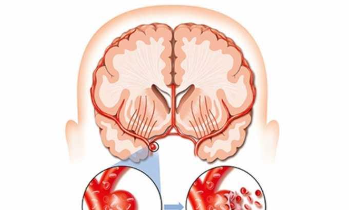 Тяжелый атеросклероз сосудов головного мозга - противопоказание к применению Пентоксифиллина
