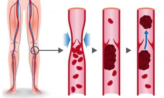 Гесперидин диосмин препятствует тромбообразованию