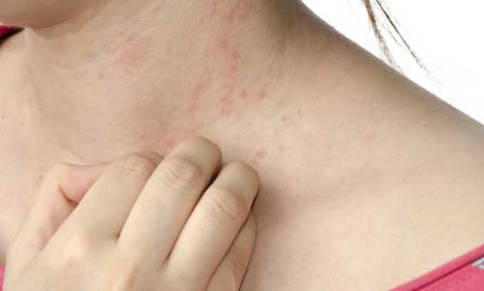Аллергическая реакция на препарат проявляется высыпаниями на коже и зудом
