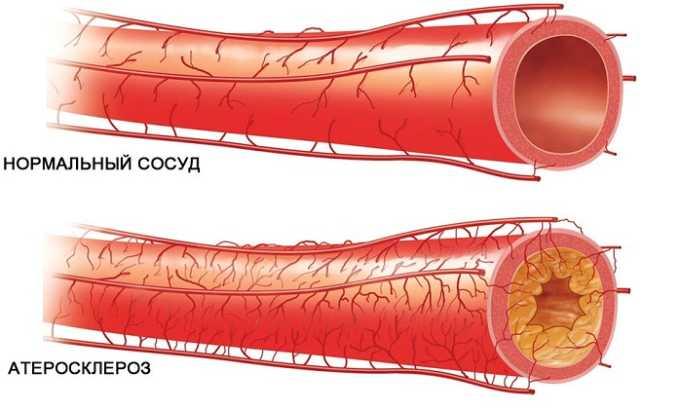 Образование атеросклеротических бляшек в просвете сосудов и их разрыв ведет к образованию тромбов
