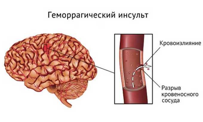 Раствор не назначают при геморрагическом инсульте