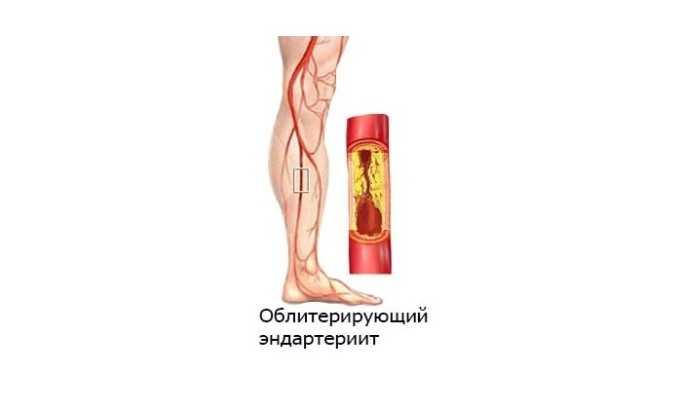 Показанием к применению Пентоксифиллина служит облитерирующий эндартериит