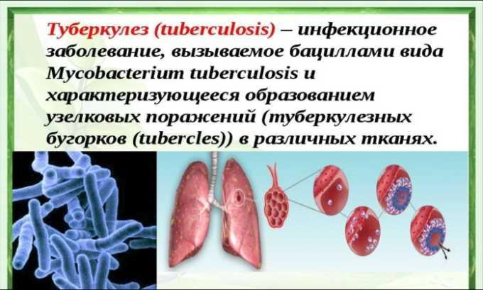 Противопоказанием к приему лекарства является туберкулез