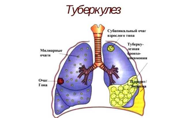 Туберкулез является противопоказанием к применению лекарства