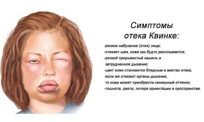 Побочные действия Аторвастатина 20 проявляются в виде отека Квинке