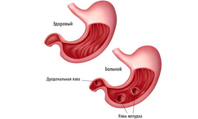 В стадии обострения желудочной язвы Кардиомагнил не назначается