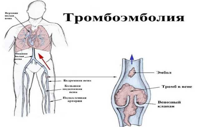 Прадакса 150 принимается для предупреждения сосудистых тромбоэмболий после хирургических вмешательств в опорно-двигательный аппарат