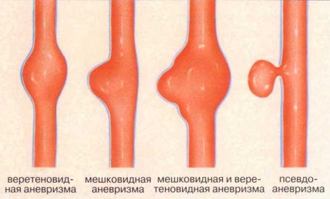 Препарат противопоказан при аневризме аорты