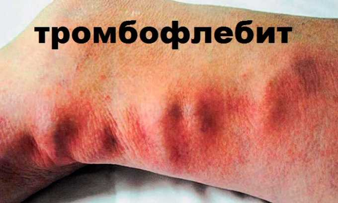 Для профилактики тромбофлебита при варикозе назначают прием препарата Курантил