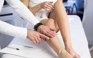 Как проходит реабилитация после операции на варикоз нижних конечностей