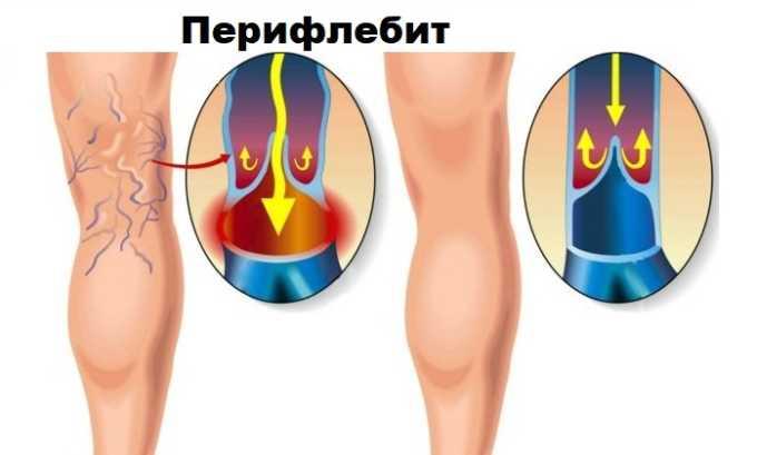 Троксевазин Нео рекомендовано использовать для лечения перифлебита