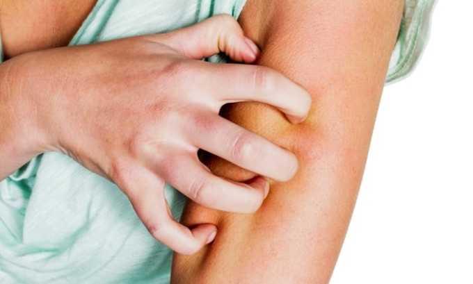 Кожная аллергия - один из побочных эффектов препарата