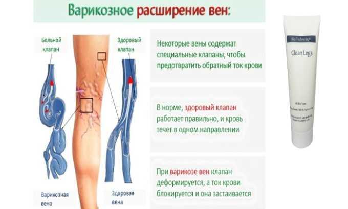 Препарат лечит все стадии варикозного расширения вен