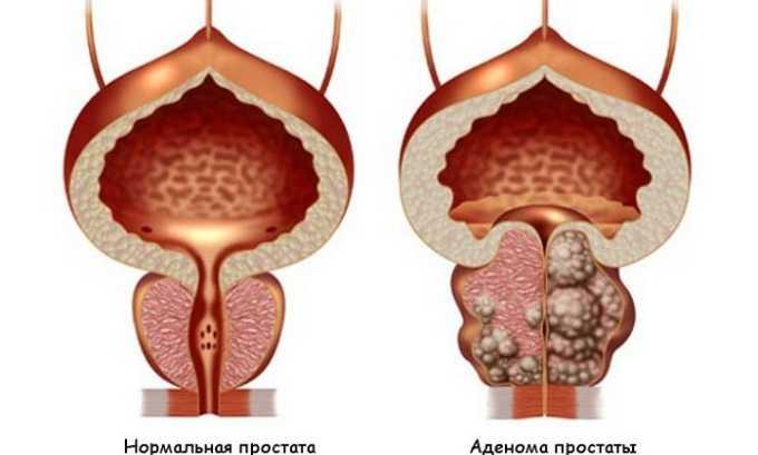Таблетки для лечения эректильной дисфункции запрещается принимать при аденоме простаты