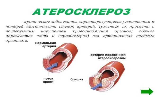 Лекарственное средство применяют при профилактике и терапии атеросклероза
