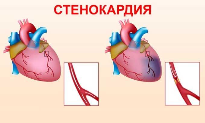 Лекарственное средство нужно осторожно использовать при стенокардии