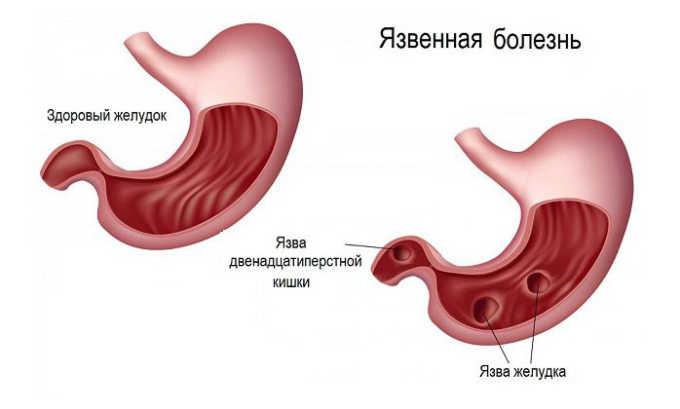 Нельзя использовать лекарство при наличии эрозивно-язвенных поражениях слизистой пищеварительных органов