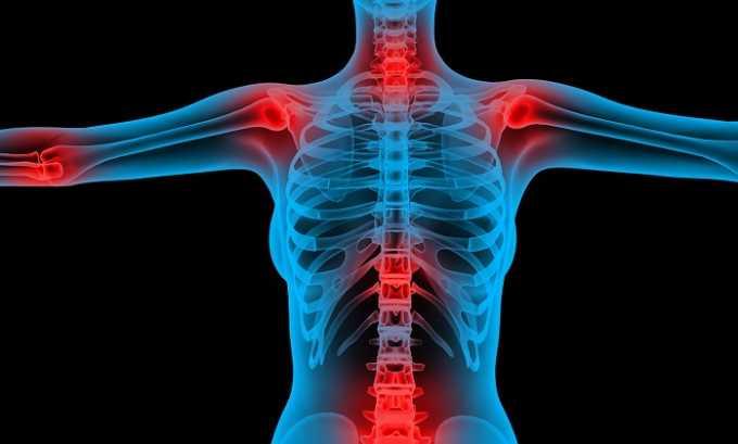 Препарат показан к применению при заболеваниях опорно-двигательного аппарата