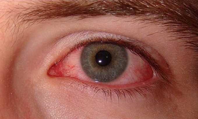 Также лекарство может спровоцировать кровоизлияние в глазах