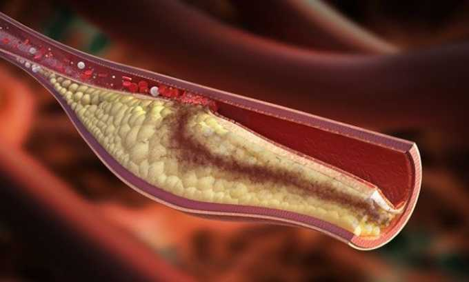 Кроме этого, препарат можно использовать для профилактики образования тромбов