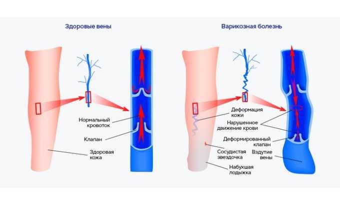 Тромбопол помогает при осложнениях варикоза