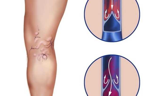 Препарат помогает в лечении варикоза