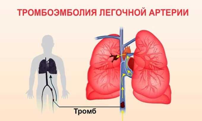 Препарат применяют при тромбоэмболии легочной артерии