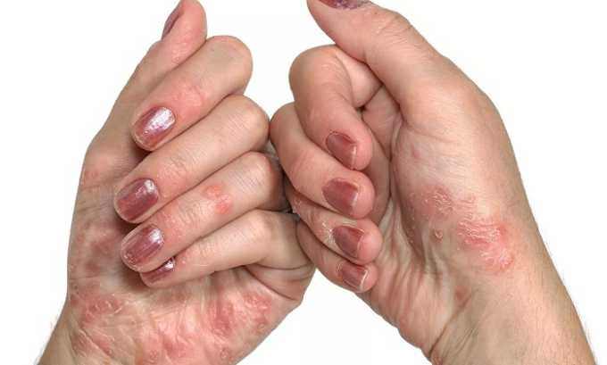Прием лекарственных средств может быть показан при псориазе