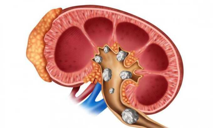 Нежелательные реакции на лечение витамином могут возникать в виде образования камней