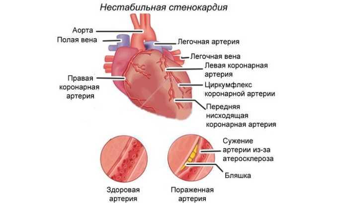 Нестабильная стенокардия - показание к назначению препарата