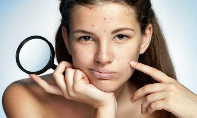 Нежелательные реакции на лечение витамином могут возникать в виде сыпи