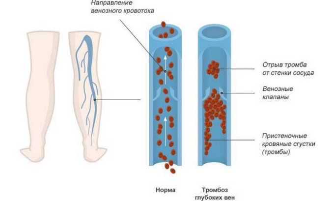 Медикамент подавляет синтез тромбоксана, что предотвращает развитие тромбоза